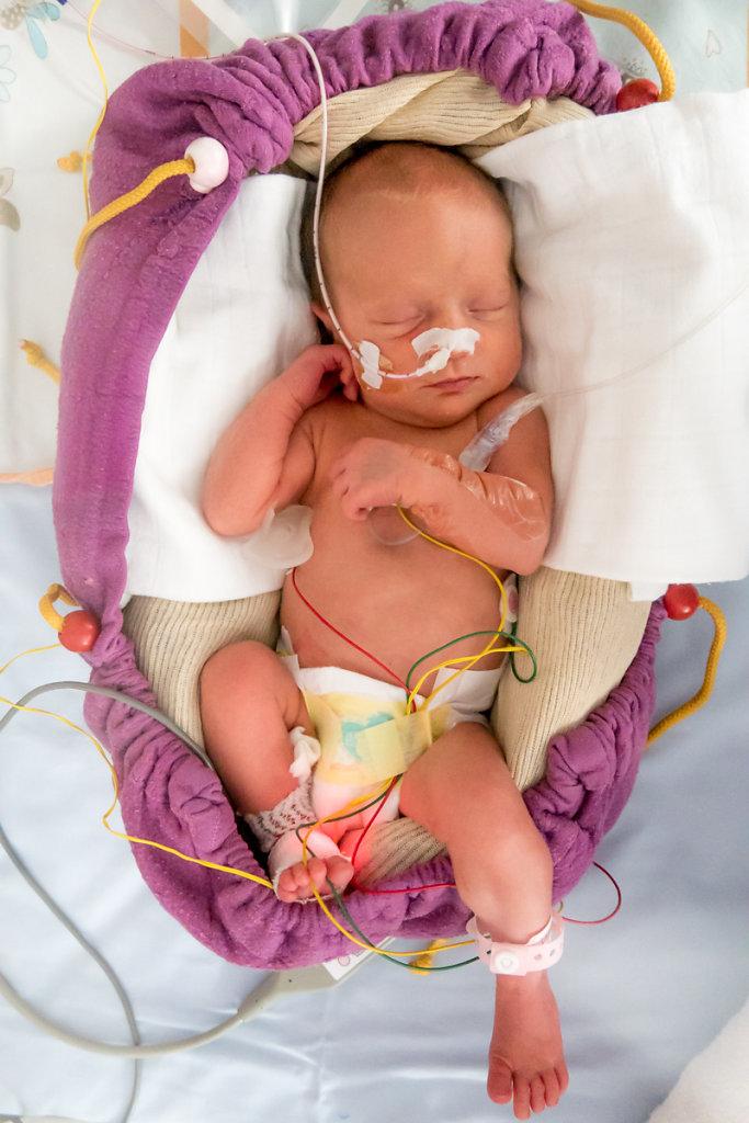 J11 – Chaque bébé est placé au sein de sa couveuse dans un « cocon » destiné à le rassurer en recréant les limites tactiles similaires à celles ressenties dans le ventre de la mère.