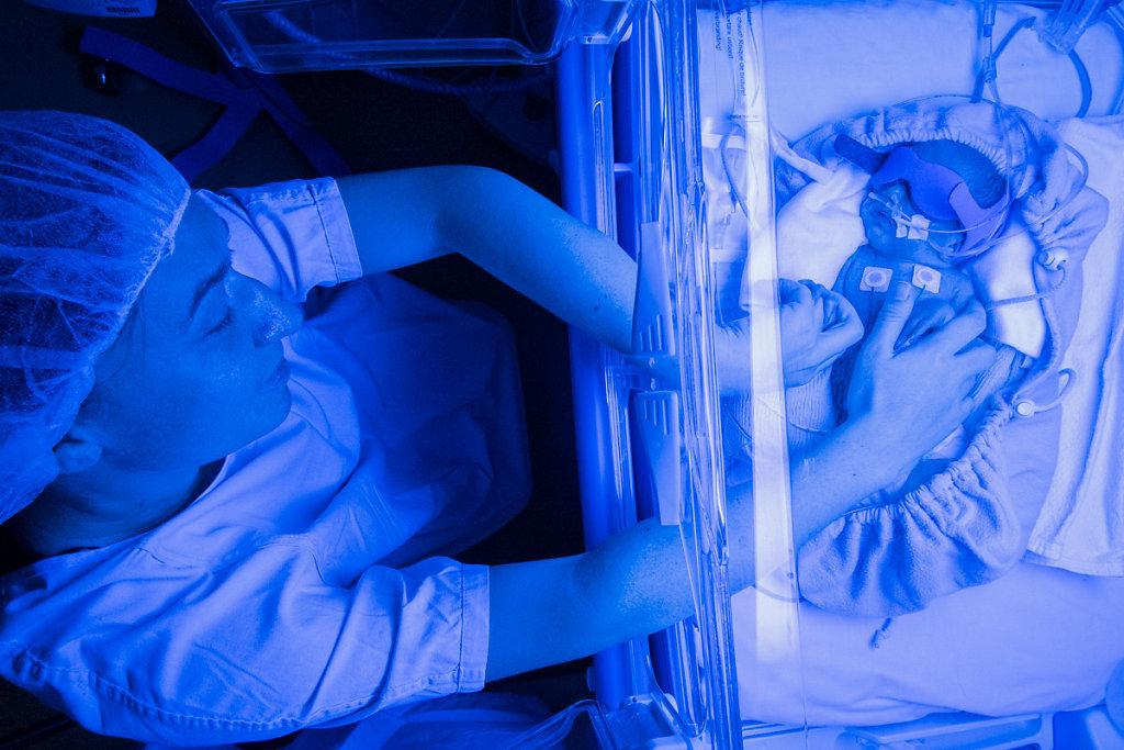 J4 - Une jaunisse s'est déclarée et nécessite un traitement par luminothérapie. Les lampes bleues et le port du masque énervent le nourrisson. Par sa présence et le toucher, sa mère tente de l'apaiser à travers les portes de la couveuse.